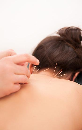 Acupuncture Lille